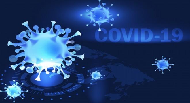 Burun estetiği sonrası COVİD-19 testi yapılır mı?
